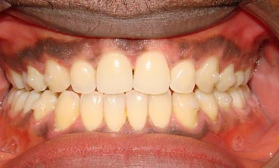 after-invisalign