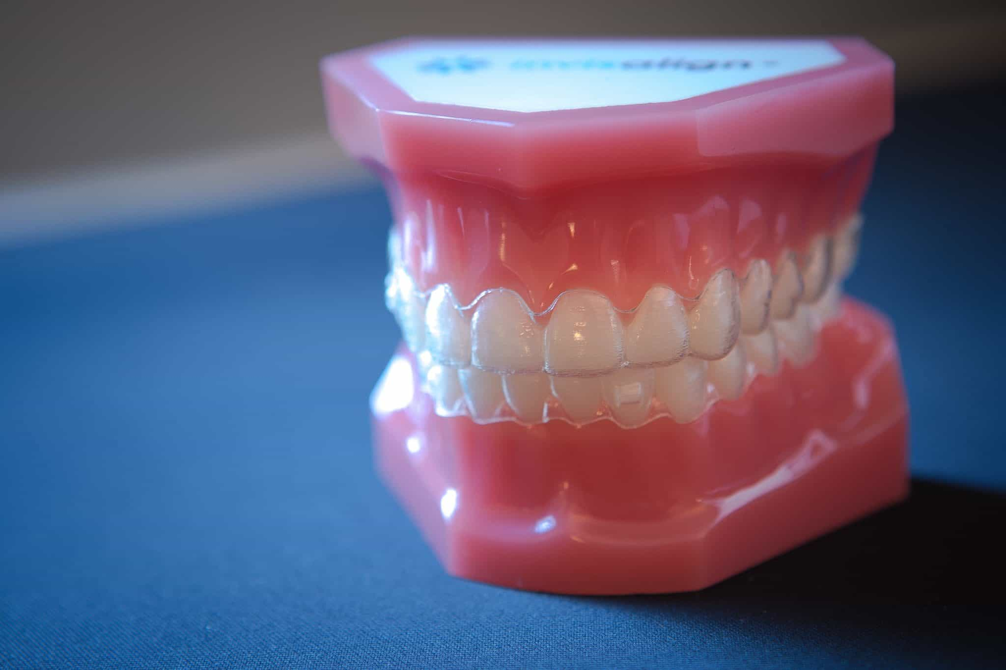 Appel Orthodontics Philadelphia Orthodontics Invisalign 1 of 7 2048x1365 - Invisalign and Invisalign Teen Top 1% Provider