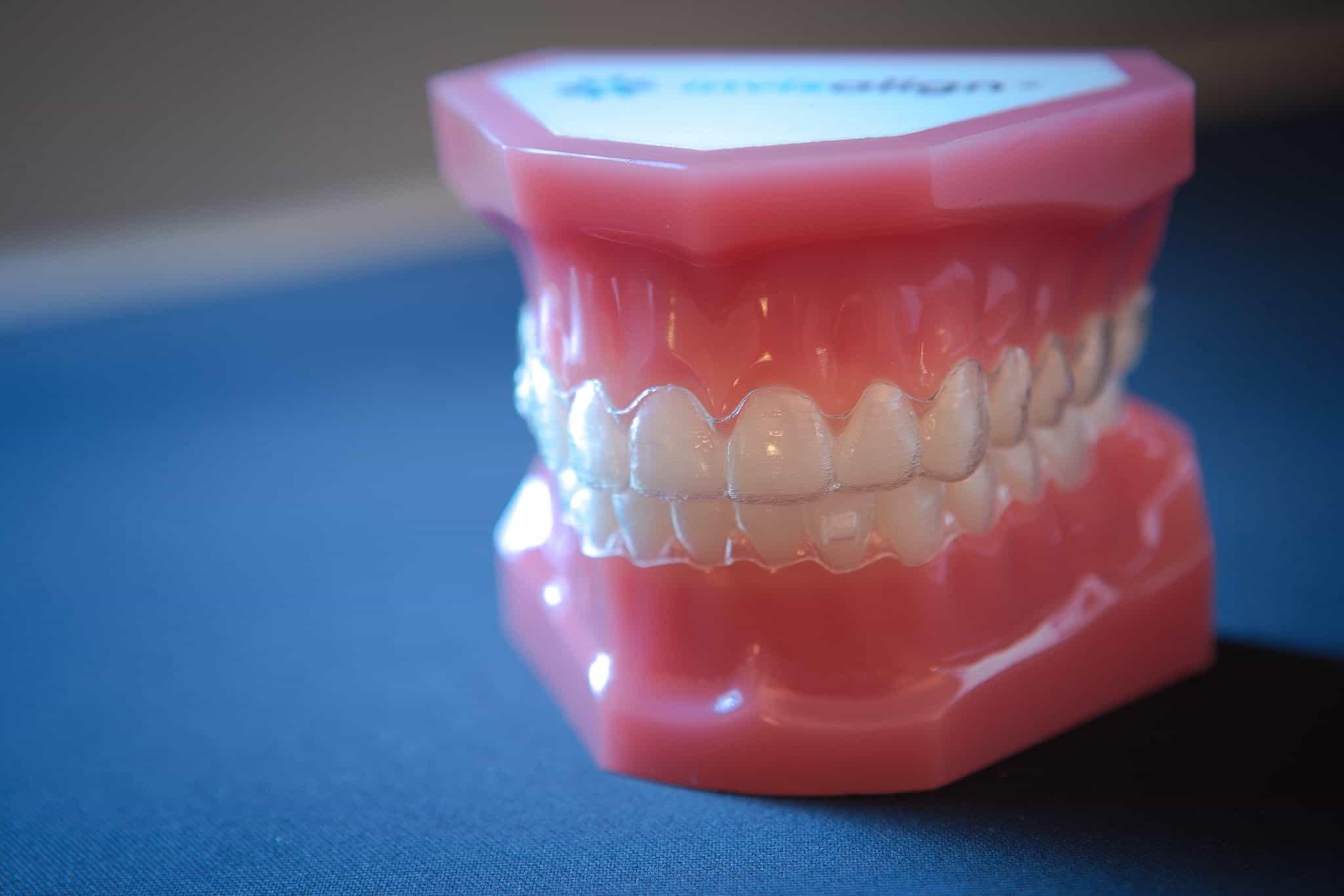 Appel Orthodontics Philadelphia Orthodontics Invisalign 1 of 7 - The Appel Orthodontics Blog