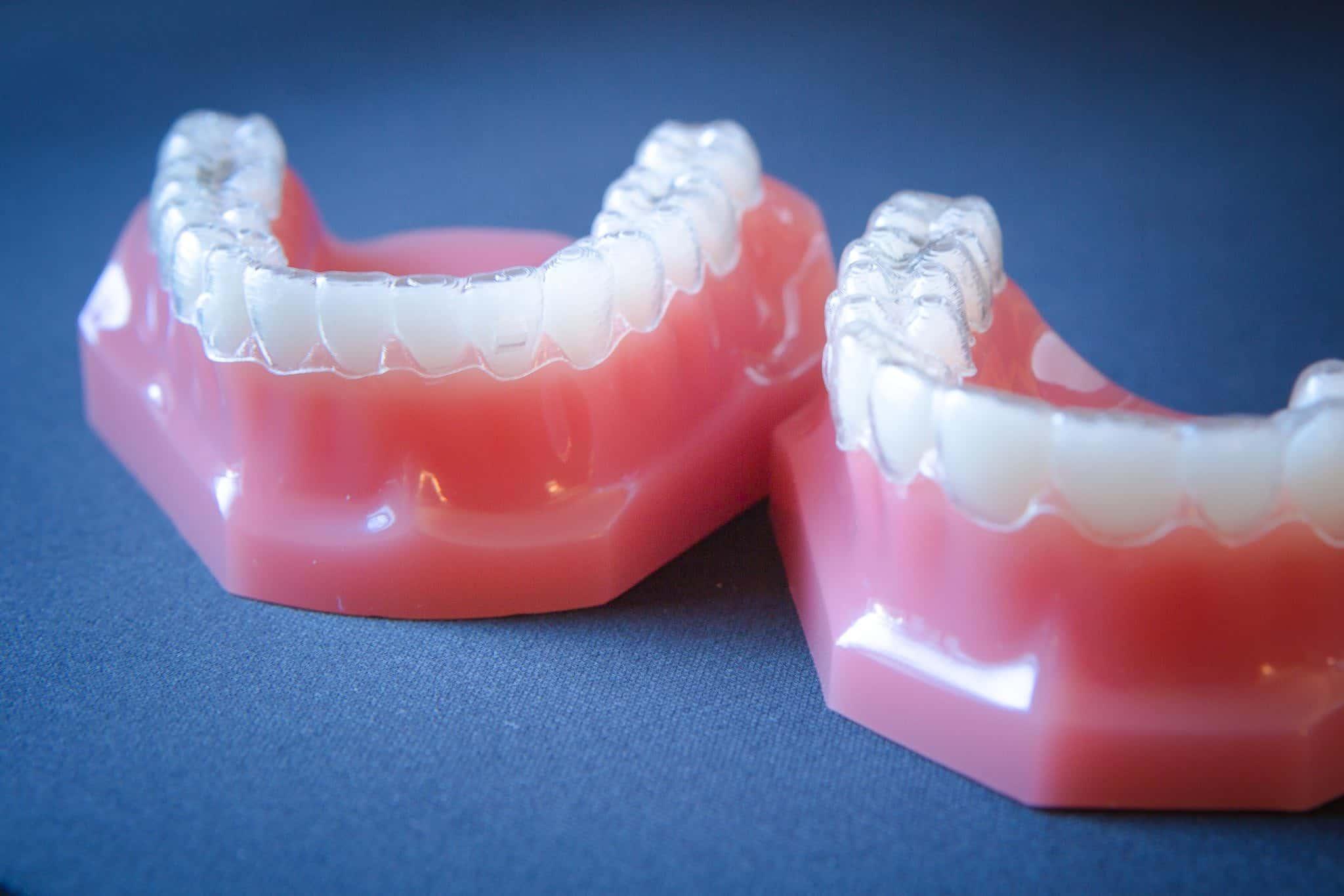 Appel Orthodontics Philadelphia Orthodontics Invisalign 2 of 7 2048x1365 - Invisalign and Invisalign Teen Top 1% Provider