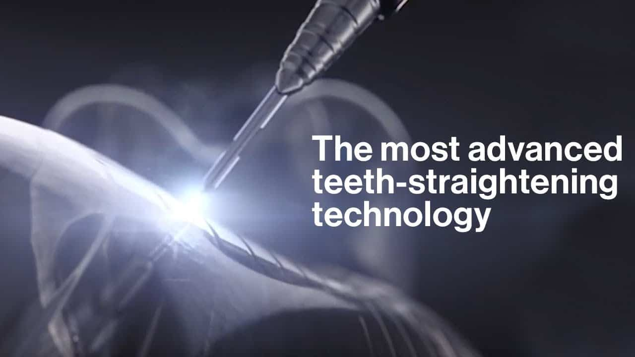 invisalign vid 2hF01 OjB58 thumbnail - Customized Orthodontic Treatment For Clear Braces