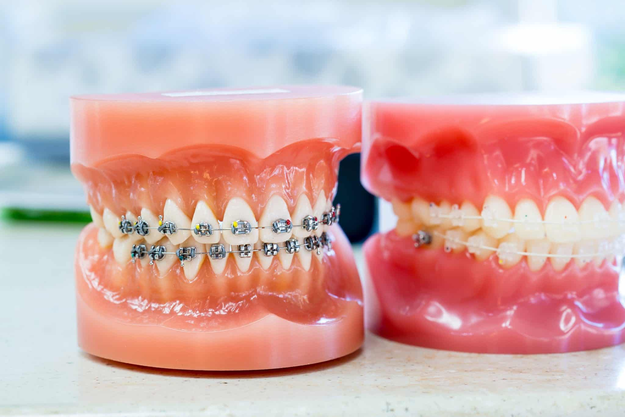 Ortho Essentials Appel Orthodontics 17 2048x1365 - Customized Braces & Orthodontic Treatment For Adults and Children