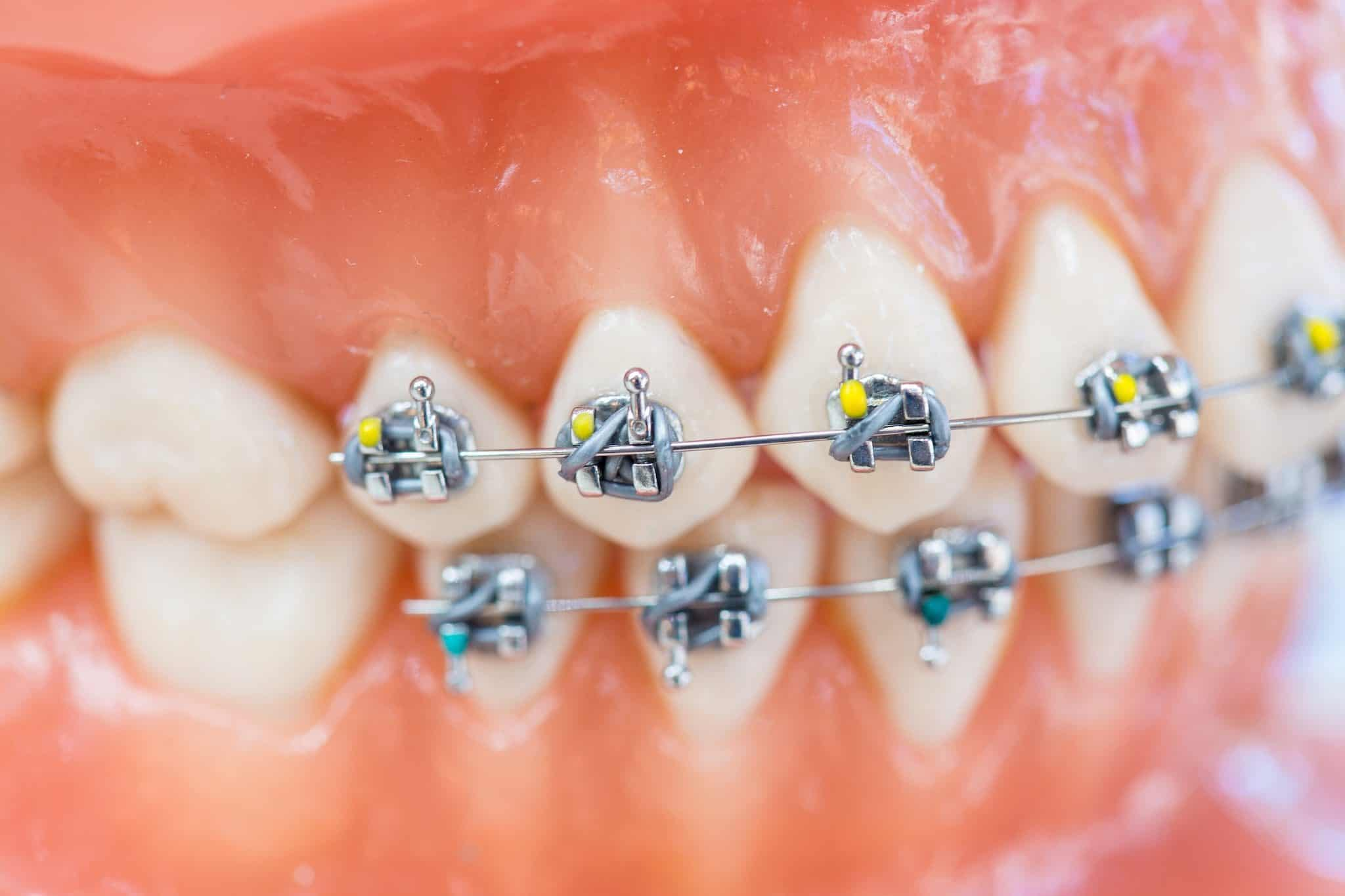 Ortho Essentials Appel Orthodontics 2 2048x1365 - Customized Braces & Orthodontic Treatment For Adults and Children