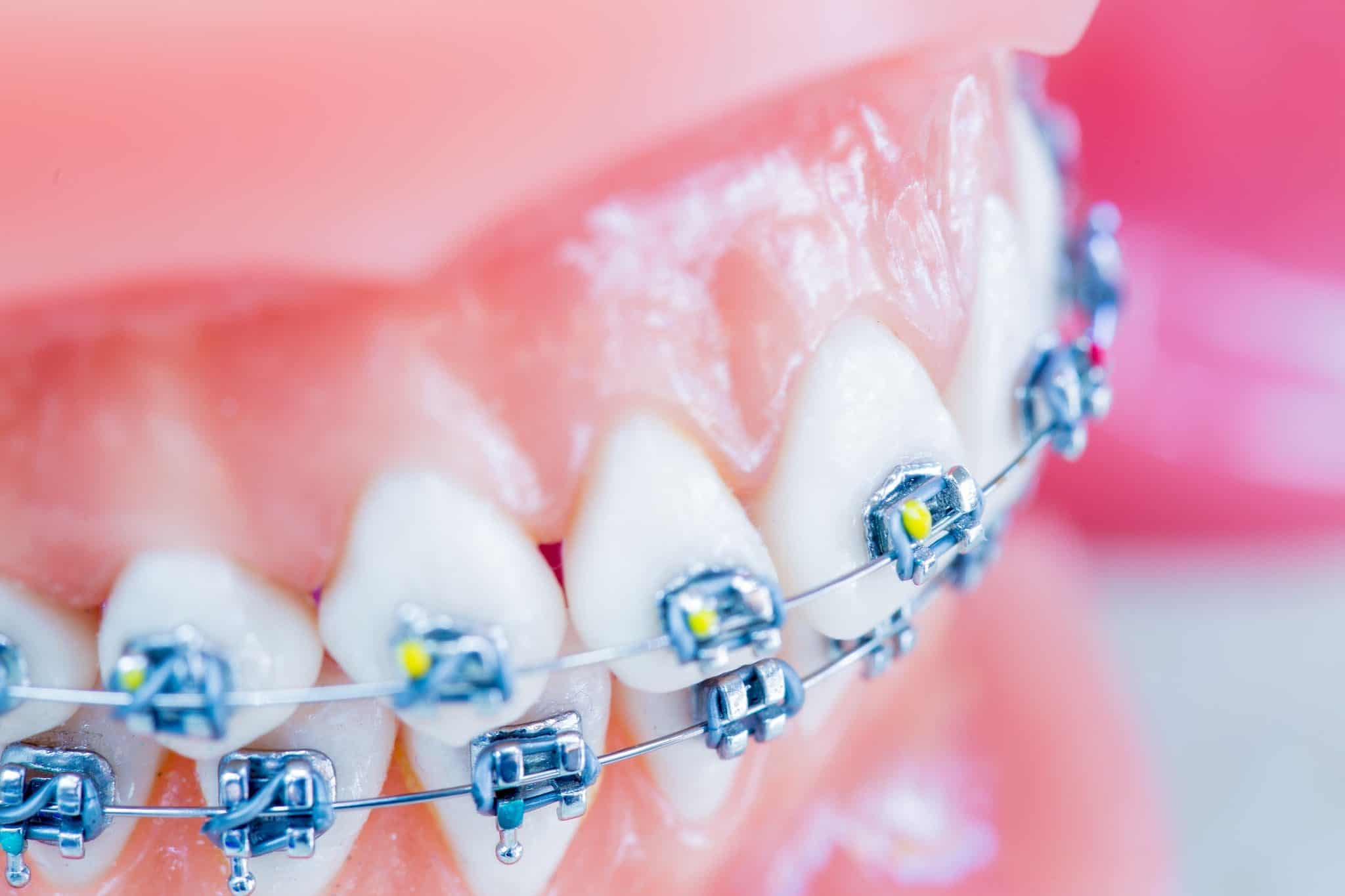 Ortho Essentials Appel Orthodontics 22 2048x1365 - Customized Braces & Orthodontic Treatment For Adults and Children