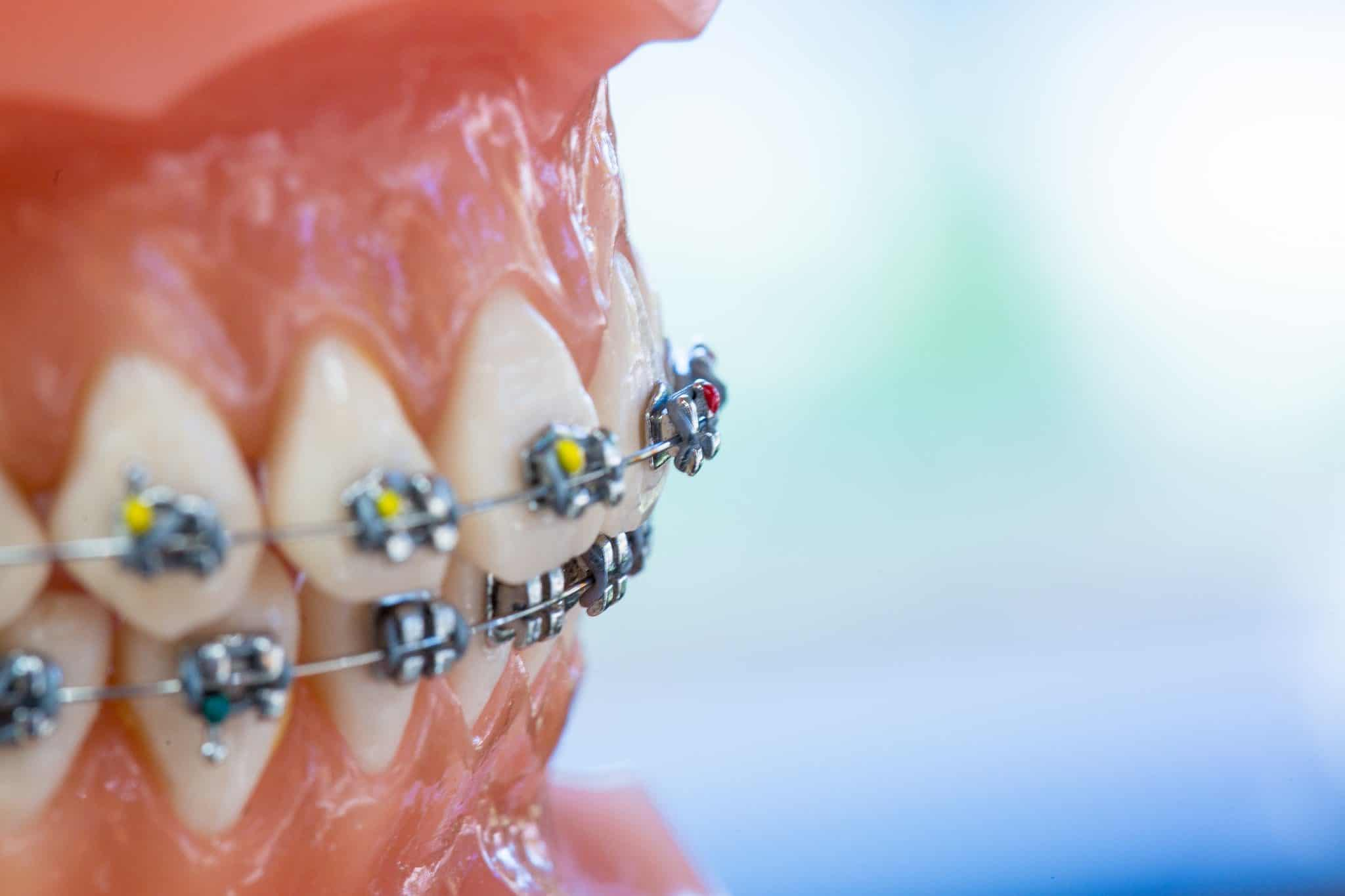 Ortho Essentials Appel Orthodontics 3 2048x1365 - Customized Braces & Orthodontic Treatment For Adults and Children