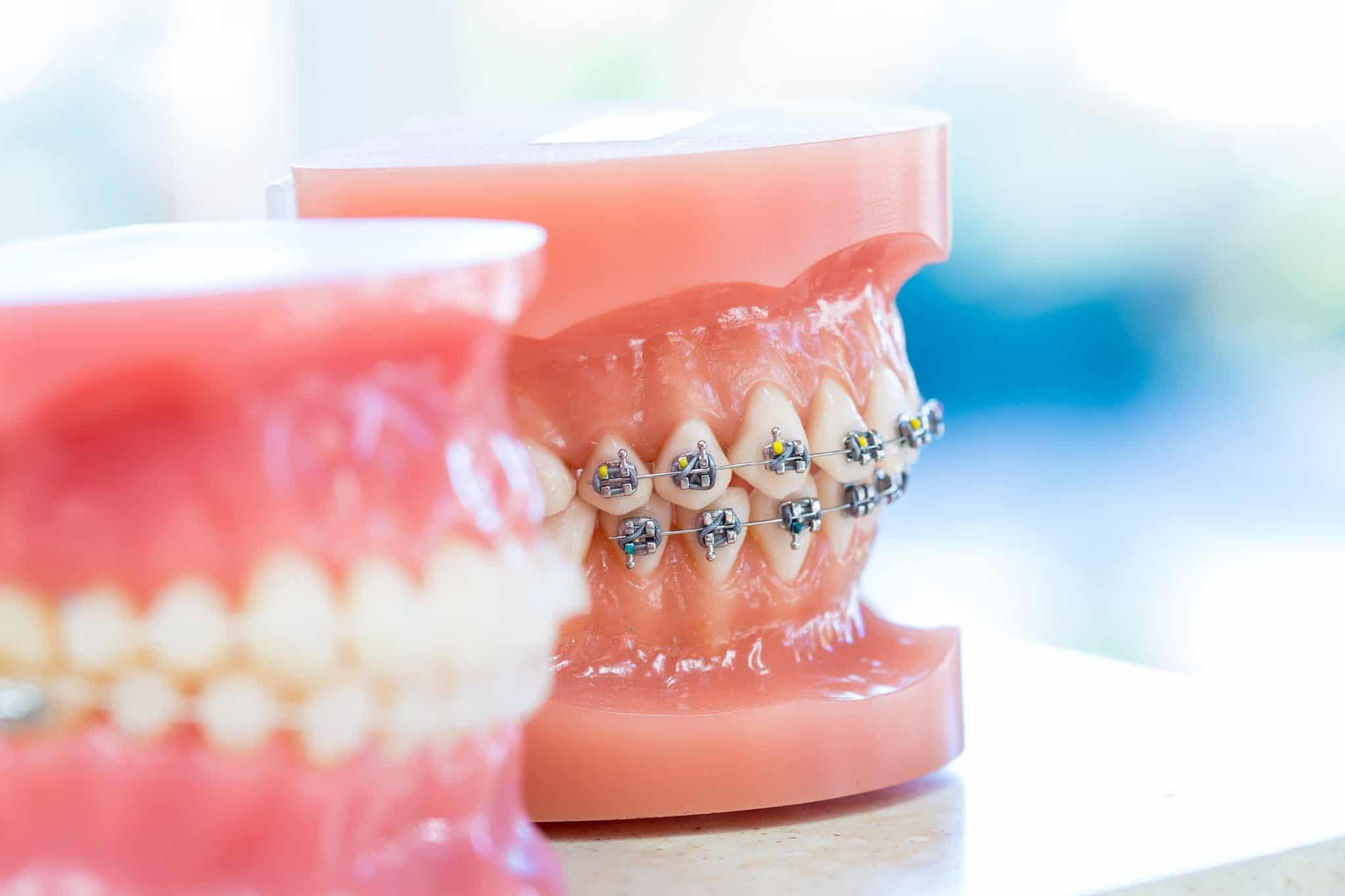 Ortho Essentials Appel Orthodontics 6 2048x1365 - Customized Braces & Orthodontic Treatment For Adults and Children