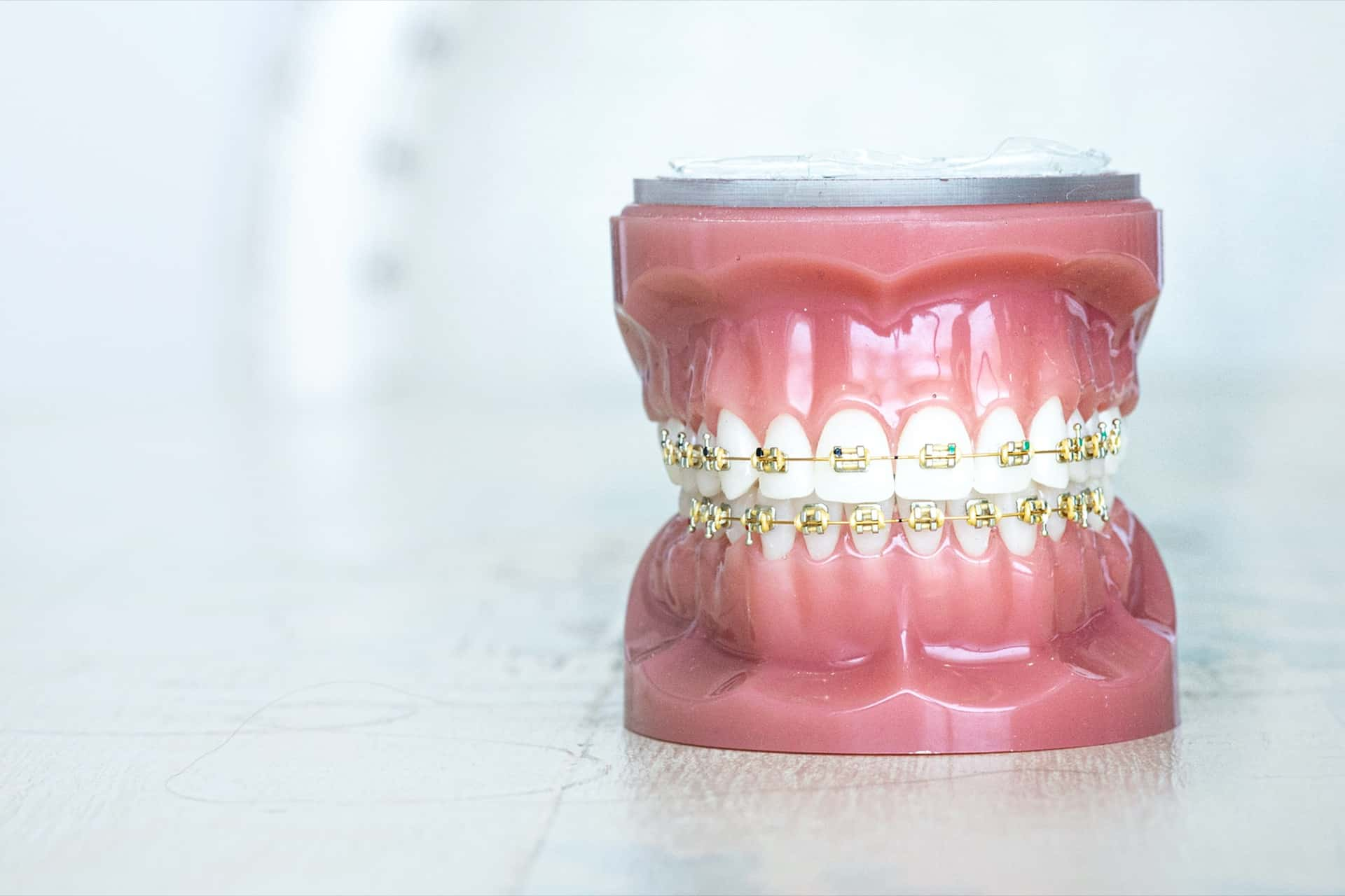 Tooth Models Gold Orthodontics 76 - Customized Braces & Orthodontic Treatment For Adults and Children