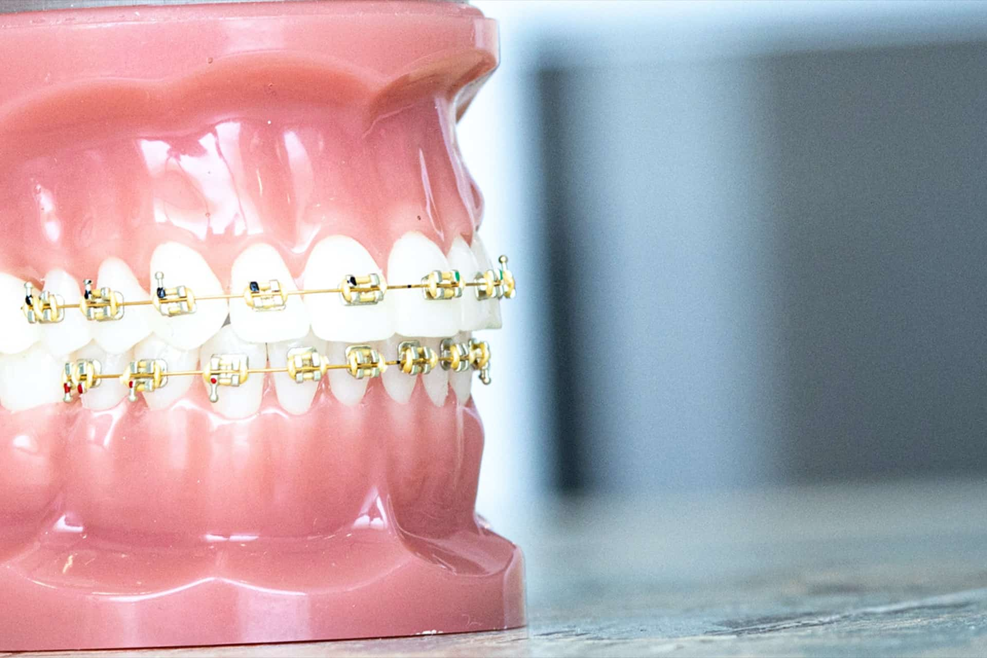 Tooth Models Gold Orthodontics 80 - Customized Braces & Orthodontic Treatment For Adults and Children